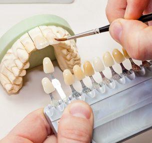 Új kihívások az esztétikai fogászatban
