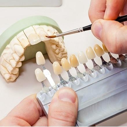 (Magyar) Új kihívások az esztétikai fogászatban