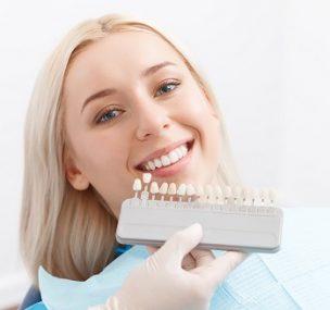 A leggyakoribb kérdések a fogfehérítéssel kapcsolatban