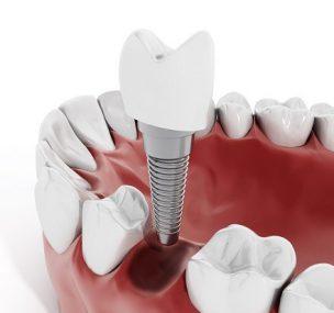 Tudjon meg többet az implantátum beültetésről: mikor van szükség csontpótlásra?