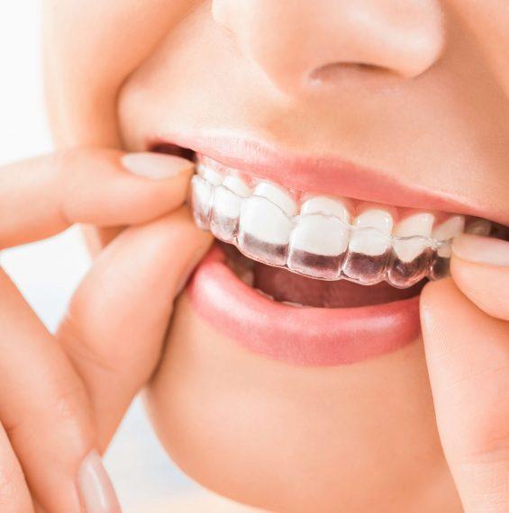 Egy év láthatatlan fogszabályzóval – <br> A páciens szemszögéből