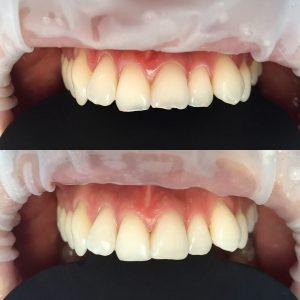 dentális erózió